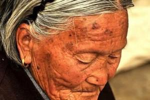 怎么做可以预防老年斑坚持做这3件事到老了很难出现老年斑